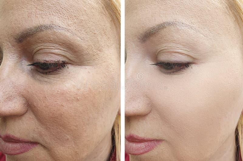 Kvinnaframsidan rynkar för cosmetologyresultat för skinrejuvenation tålmodig behandling för korrigering för terapi för regenereri royaltyfria bilder