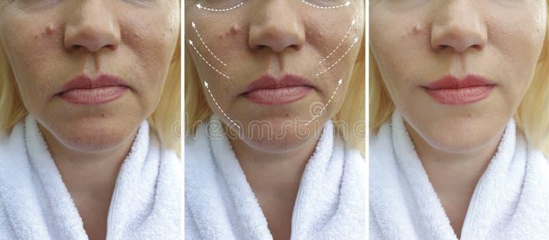 Kvinnaframsidan rynkar för efter collage för korrigering för borttagning för resultat för behandling för kosmetologspänningshälsa royaltyfria bilder