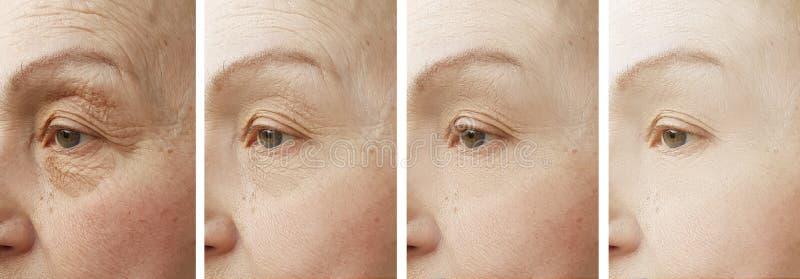 Kvinnaframsidan rynkar för skillnadkosmetolog för korrigering tålmodig föryngring för behandling för cosmetology före och efter fotografering för bildbyråer