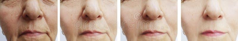 Kvinnaframsidan rynkar föryngring för behandling för cosmetology för kosmetolog för korrigering tålmodig före och efter royaltyfria bilder
