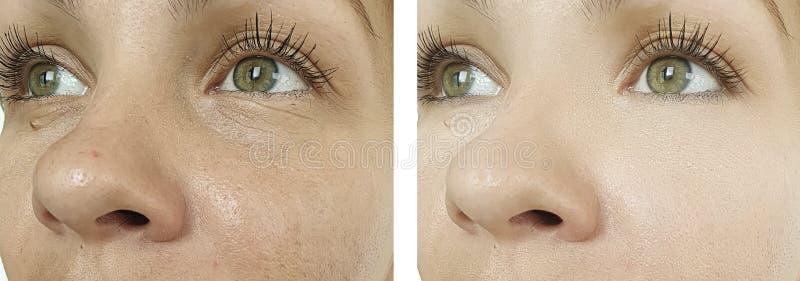 Kvinnaframsidaskrynklor före och efter som hydratiserar föryngringcosmetologybehandling royaltyfria bilder