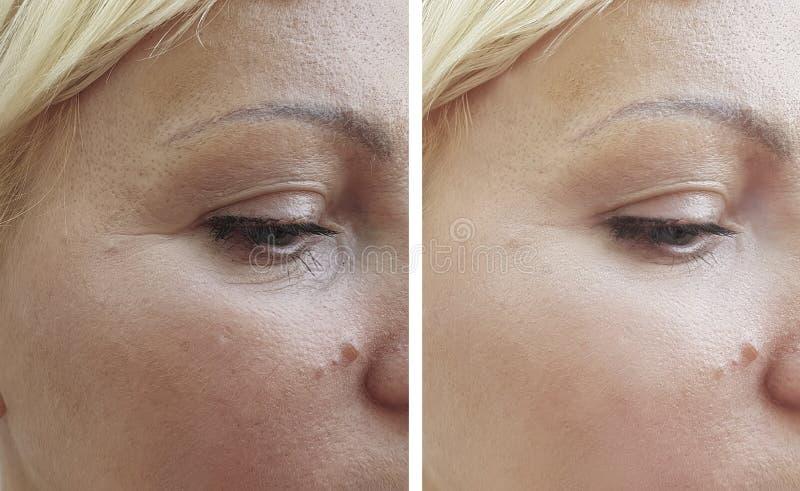 Kvinnaframsidaskrynklor före och efter som lyfter korrigering arkivbilder