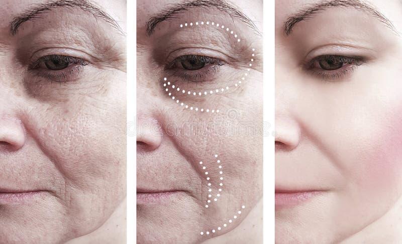 Kvinnahud rynkar borttagningsmedicin för regenereringskillnad efter kontrast för behandlingar för collagecosmetologyregenerering royaltyfria foton
