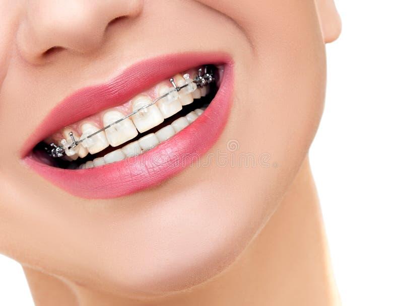 Kvinnaleende med Orthodontic klar hänglsen på tänder arkivbild