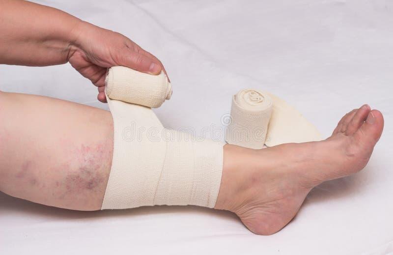 Kvinnan förbinder lägger benen på ryggen med resår förbinder mot åderbråcks åder på ben och blodpropp, närbilden, vit bakgrund, p arkivbild