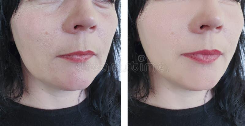 Kvinnan rynkar före och efter oval cosmetologyskillnad för att lyfta antiaging tillvägagångssätt fotografering för bildbyråer