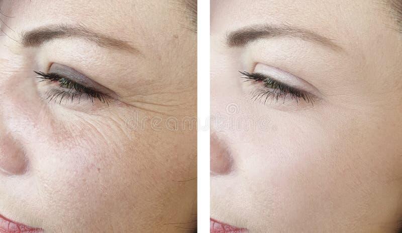Kvinnaskrynklor f?re och efter som lyfter behandlingar f?r utfyllnadsgods f?r resultatkorrigering mogna royaltyfria bilder