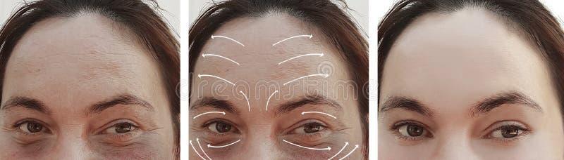Kvinnaskrynklor vänder mot före och efter korrigeringen för terapi för kosmetologskillnadcosmetology, pil royaltyfri fotografi