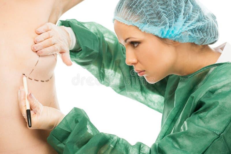 Kvinnateckning för plast- kirurg på kropp fotografering för bildbyråer