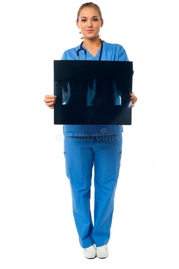 Kvinnlig doktor med röntgenstrålerapporten fotografering för bildbyråer