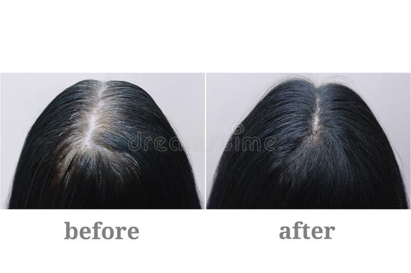 Kvinnlig elevrepresentant med svart grått hår Isolerat ?ver vit Överkant av huvudet F?r och after fotografering för bildbyråer