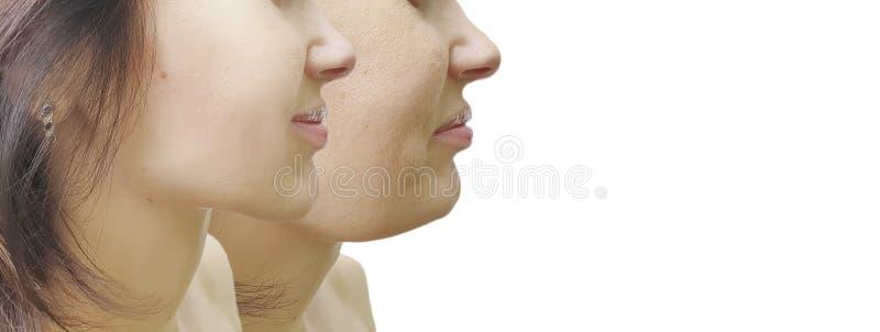Kvinnlig korrigering för dubbelhaka före och efter arkivfoton