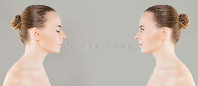 Kvinnlig kosmetisk kirurgi för näsan före och efter eller retuscherar royaltyfria foton
