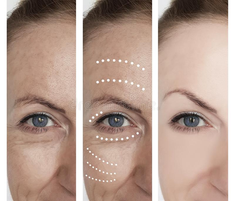 Kvinnlig skrynklaborttagning, innan att hydratisera efter behandlingar för dermatologi för tillvägagångssättresultatregenerering arkivbilder