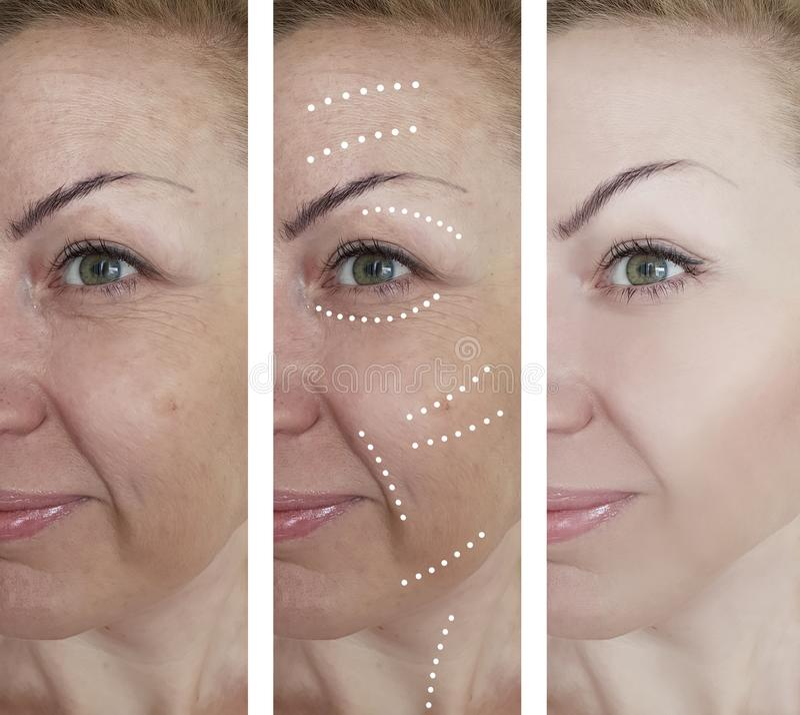Kvinnlig skrynklaborttagningsterapi som hydratiserar efter behandlingar för dermatologi för tillvägagångssättresultatregenerering fotografering för bildbyråer