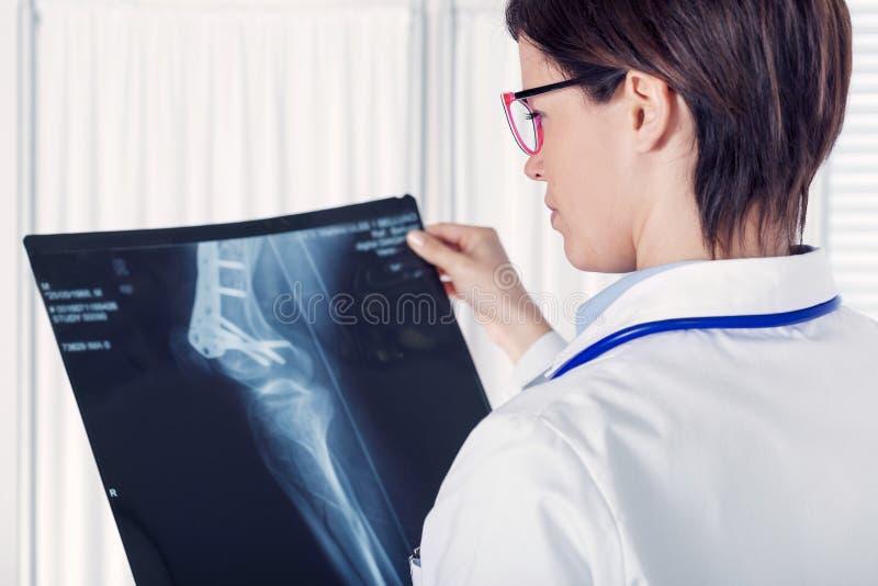 Kvinnlig ung doktor eller radiolog med en röntgenstråle fotografering för bildbyråer