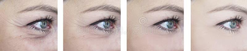 Kvinnliga äldre ögonskrynklor för skillnad efter lyftande korrigeringstillvägagångssätt arkivfoto