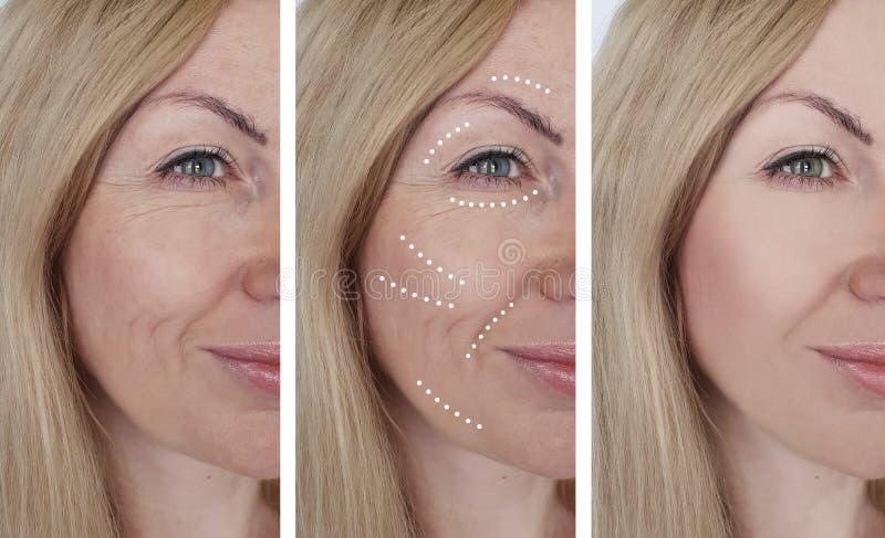 Kvinnliga behandlingar för dermatologi för skrynklaborttagning före och efter arkivbild