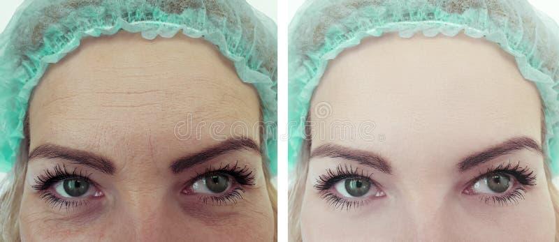 Kvinnliga behandlingar för terapi för korrigering för pannaskrynklaresultat före och efter royaltyfri foto