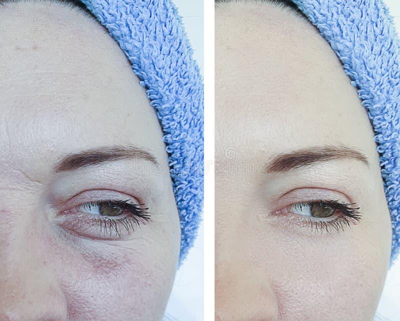 Kvinnliga kosmetologskrynklor f?r efter korrigering arkivfoton
