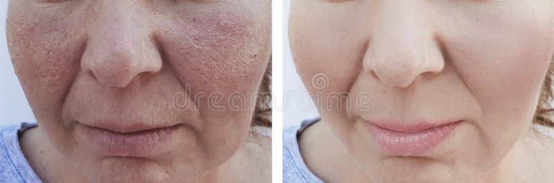 Kvinnliga skrynklor för efter korrigering procedureremoval s för effekt för terapi för behandlingresultat royaltyfria bilder