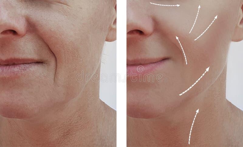 Kvinnliga vuxna tillvägagångssätt för skillnad för patient för utfyllnadsgods för dermatologi för skrynklaborttagningsföryngring  arkivbilder