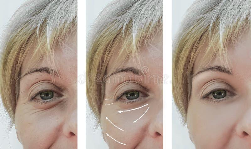 Kvinnliga vuxna tillvägagångssätt för skillnad för patient för utfyllnadsgods för skrynklaborttagningsföryngring före och efter,  fotografering för bildbyråer