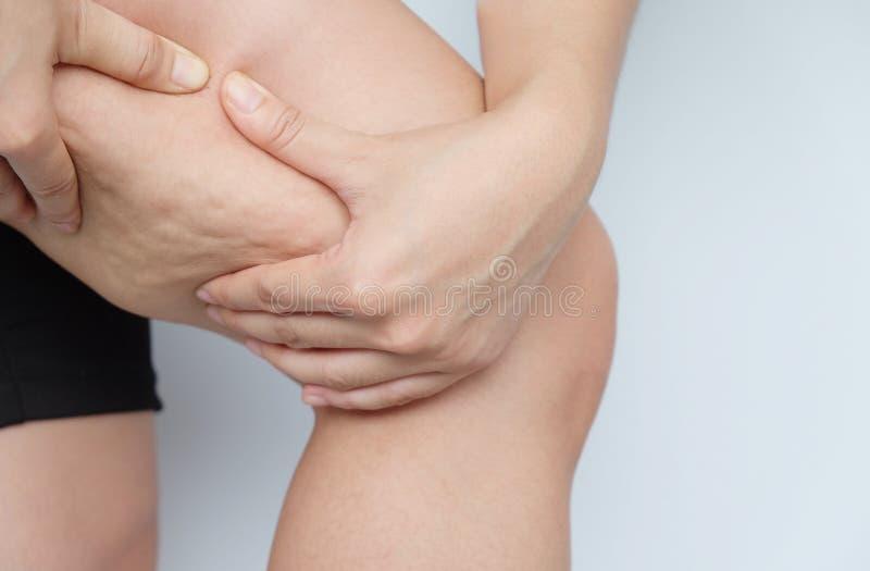 Kvinnlign lägger benen på ryggen lår med cellulite Hudproblem, kroppomsorg, över arkivbilder