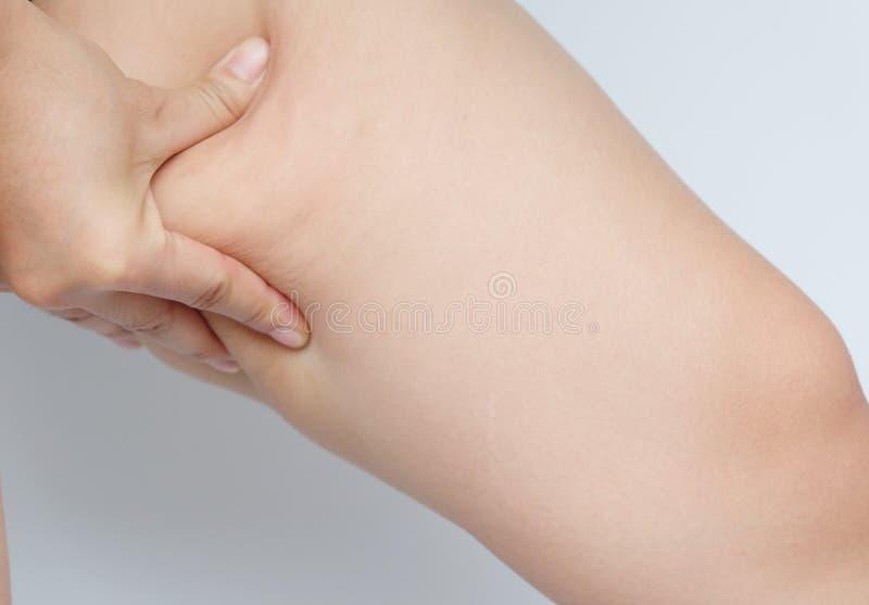 Kvinnlign lägger benen på ryggen lår med cellulite Hudproblem, kroppomsorg, över royaltyfria bilder