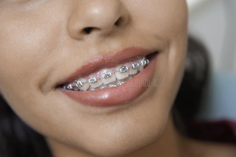 Kvinnligt med stag på tänder royaltyfri bild