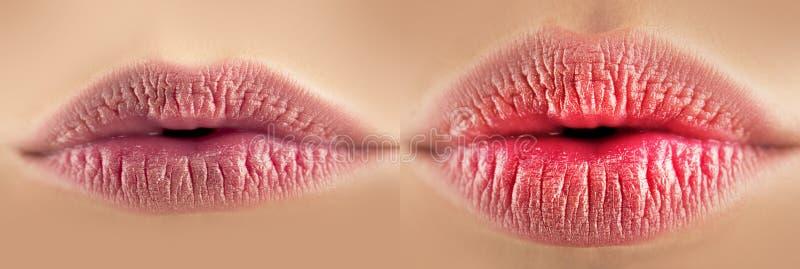 Kvinnligt stigandetillvägagångssätt för kanter före och efter Sexiga fylliga kanter efter utfyllnadsgods Kantstigande Sexig mun,  arkivfoton