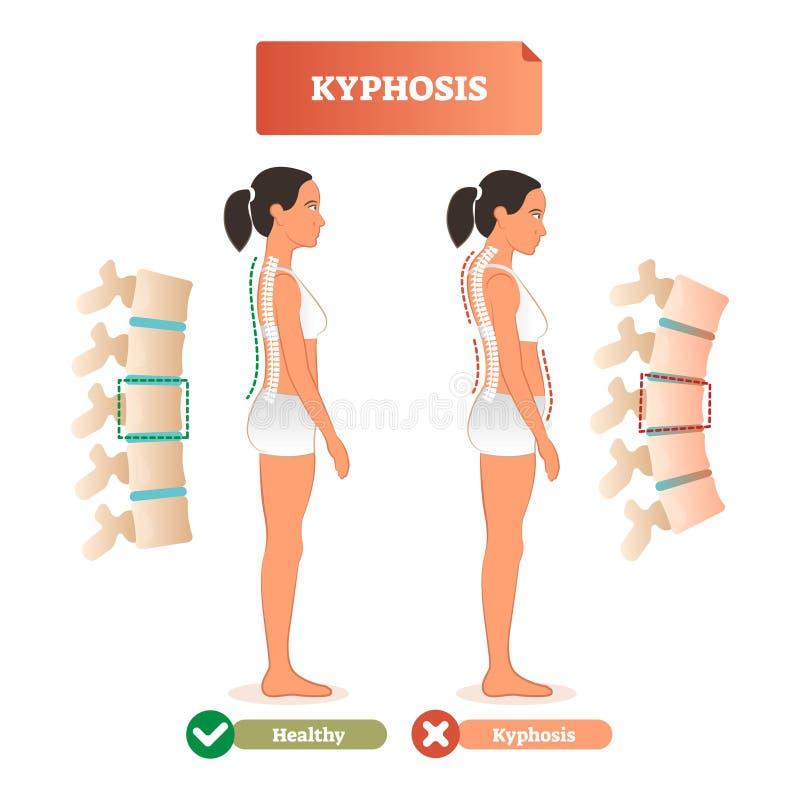 Kyphosis vector illustration. Back spine defect diagnosis vs healthy. royalty free illustration