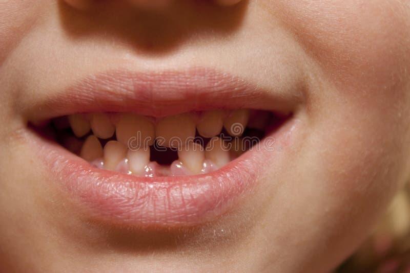 Lächeln eines Kindes stockbilder