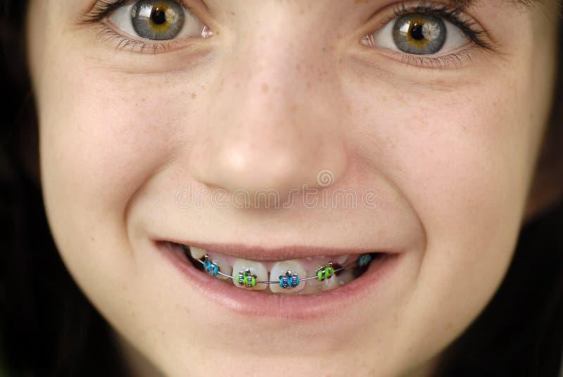 Lächeln mit Klammern lizenzfreies stockbild