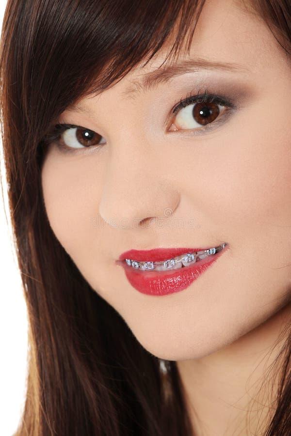 Lächelnde jugendlich Frau mit der Korrektur der Einheit auf Zähnen stockfotos