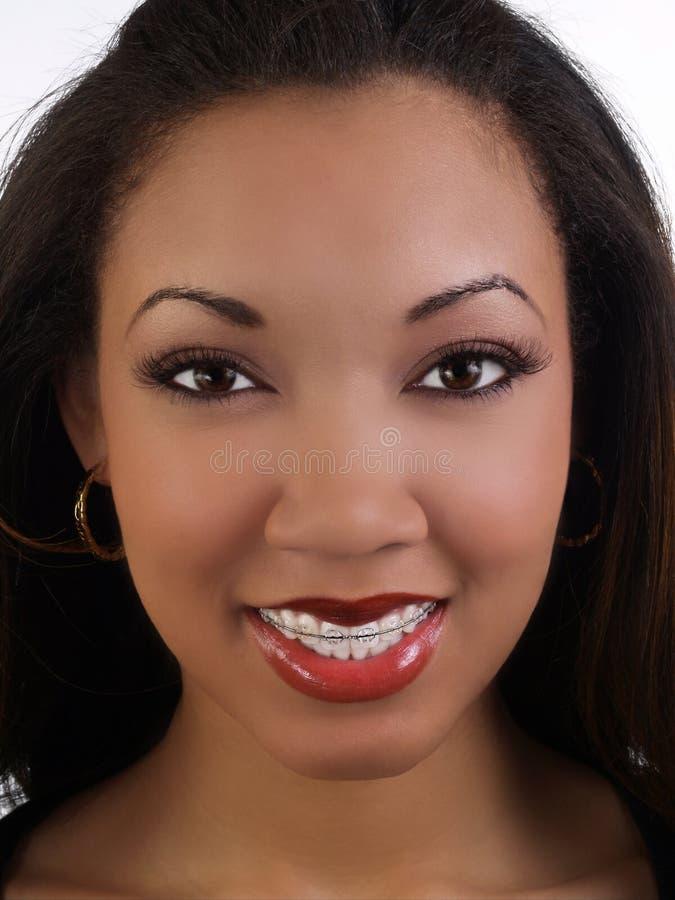 Lächelnde junge schwarze Frau mit den Klammeroberlederzähnen stockbilder