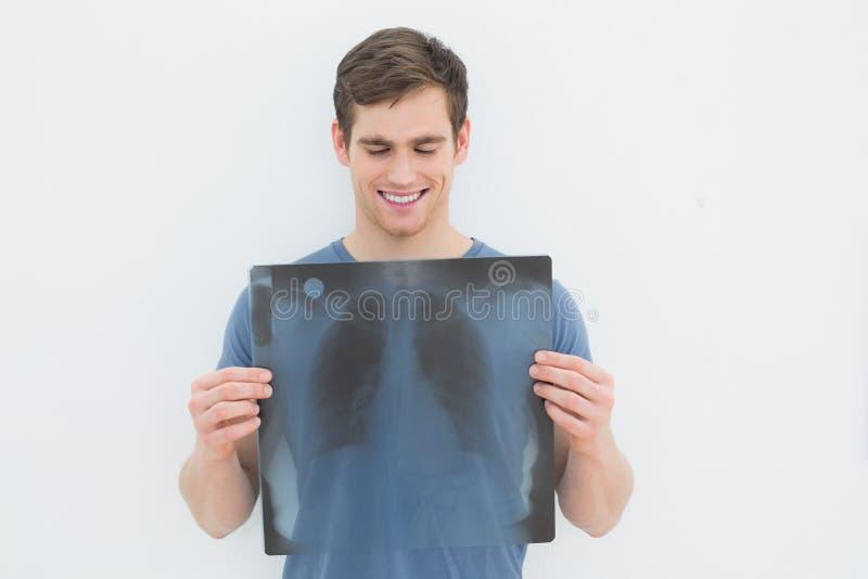 Lächelnder junger Mann, der Lungenröntgenstrahl hält stockfoto