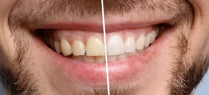 Lächelnder Mann vor und nach Zahnweißungsverfahren lizenzfreie stockfotografie