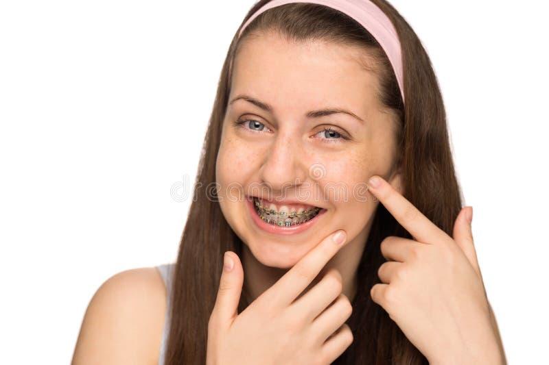 Lächelndes Mädchen mit den Klammern, die den Pickel lokalisiert zusammendrücken stockbild