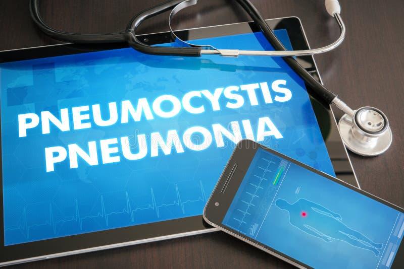 Läkarundersökning för diagnos för Pneumocystis lunginflammation (smittsam sjukdom) arkivfoto
