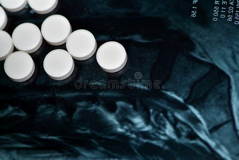 Läkemedelstabletter på en dammig MRT- bild av halskotpelaren royaltyfri foto