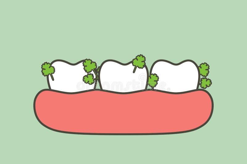 Légume coincé en dents, cause de dent de délabrement et mauvaise haleine illustration de vecteur