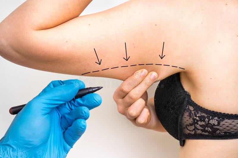 Línea del drenaje del doctor de la cirugía plástica en el brazo paciente fotografía de archivo libre de regalías
