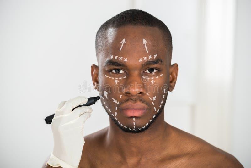 Líneas de la corrección del dibujo de la mano de la persona en la cara del hombre imagen de archivo libre de regalías