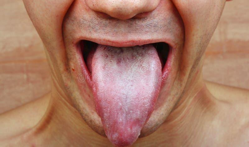Língua da infecção fotografia de stock