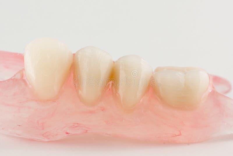 Löstagbara tandproteser för modernt nylon arkivfoton