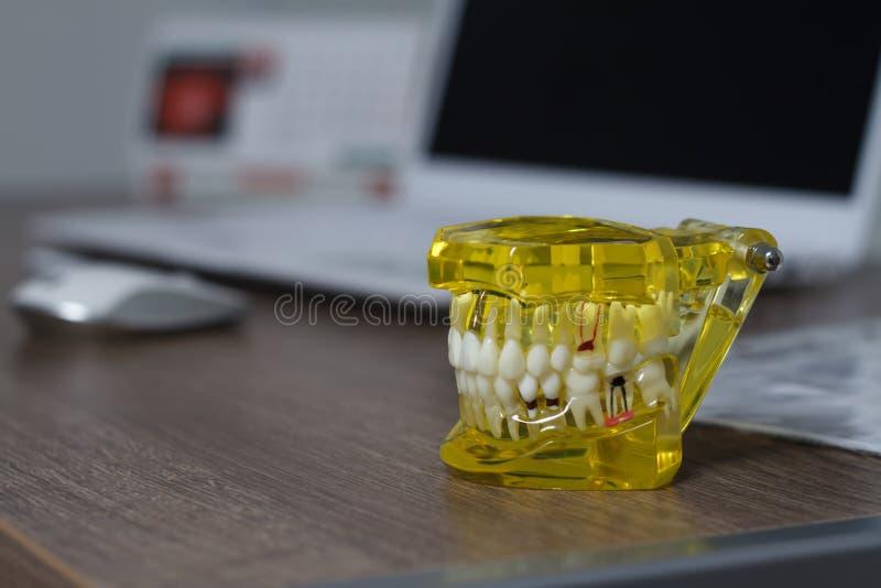 L'étudiant dentaire d'art dentaire de dent apprenant les dents modèles de enseignement d'apparence, racines, gommes, maladie des  photographie stock