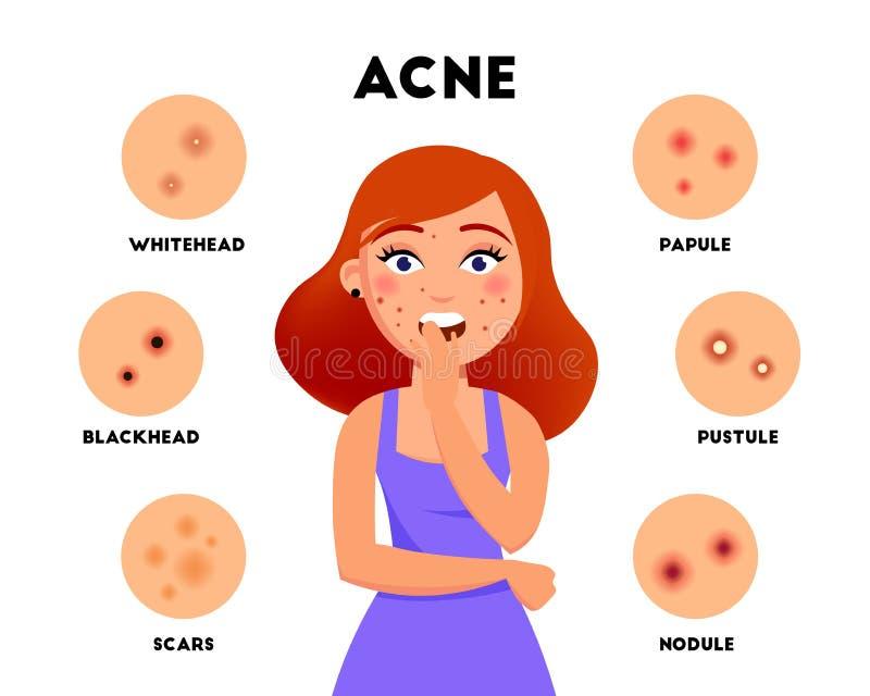 L'acné dactylographie à vecteur infographic d'éléments l'illustration plate Fille avec l'acné sur le visage et l'ensemble différe illustration de vecteur