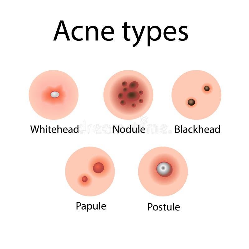 L'acne scrive l'illustrazione di vettore illustrazione di stock