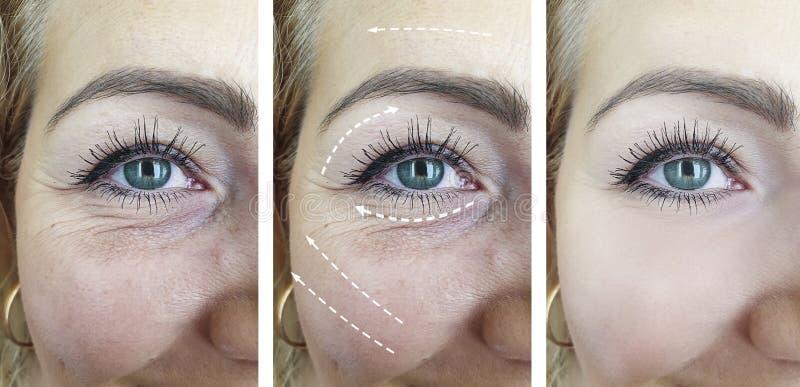 L'adulto della donna si corruga prima dopo i risultati di contrasto di correzione di cosmetologia di effetto del collage fotografia stock libera da diritti